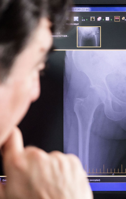 Total Hip Replacement Nowra – South Coast Orthopaedic Clinic